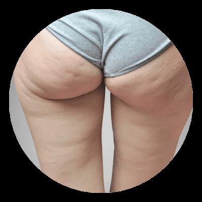 Cellulit na pośladkach