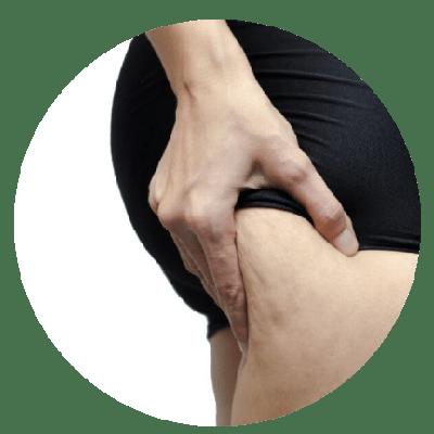 Cellulit cyrkulacyjny na pośladkach