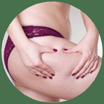 Cellulit tłuszczowy na udzie