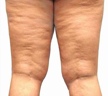 Czym jest cellulit obrzękowy