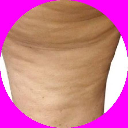 cellulit obrzękowy